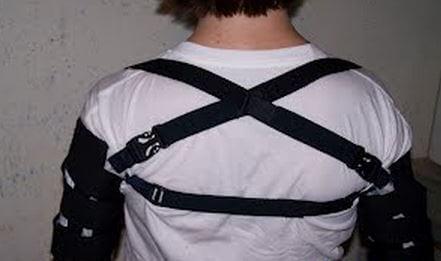 Shoulder sling for subluxation