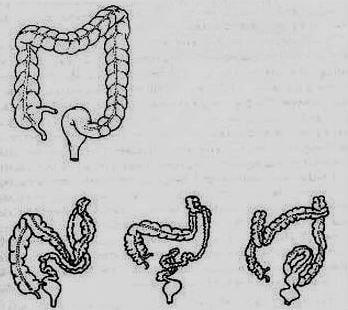 Tortuous colon - What is?, Picture, Treatment, Symptoms