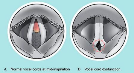 Vocal Cord Dysfunction - Treatment, Symptoms, Causes