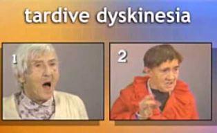 tardive dyskinesia image