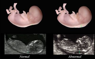 Nuchal translucency pictures