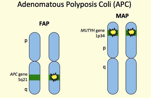 Familial Adenomatous Polyposis - Symptoms, Treatment