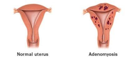 adenomyosis vs normal uterus
