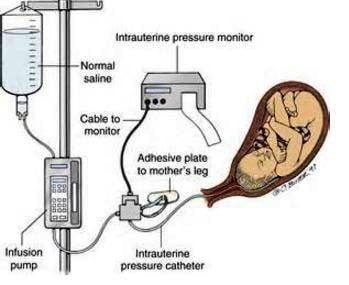 amnioinfusion