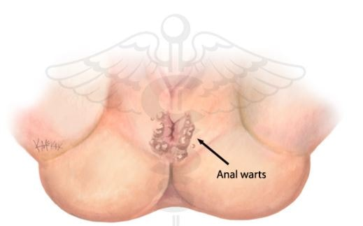 Anal cancer lump