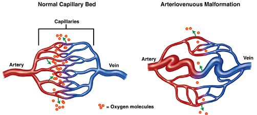 avm arteriovenous malformation