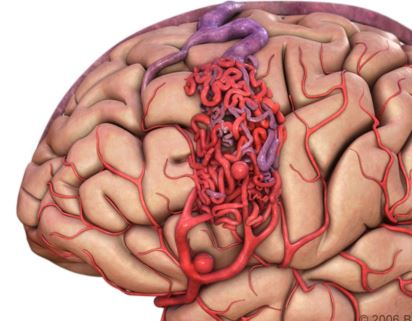 Arteriovenous Malformation - Pictures, What is?, Types, Causes