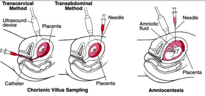 chorionic villus sampling procedure