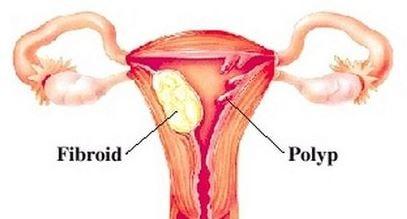 Placental polyp