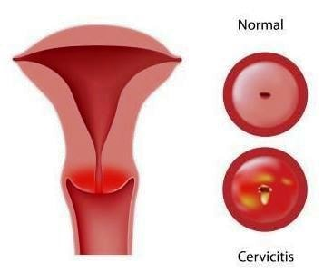 inflamed cervix picture