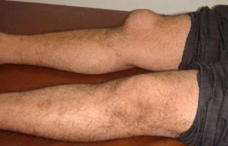 bursitis knee - treatment, pictures, symptoms,causes, diagnosis, Human Body
