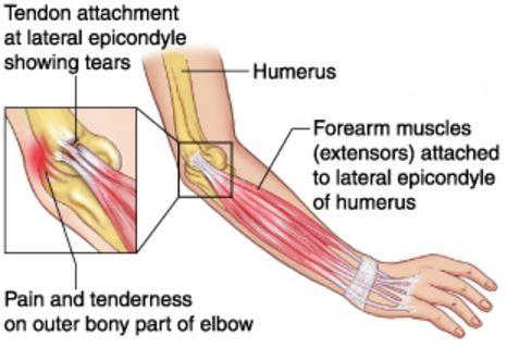 lateral epicondylitis image