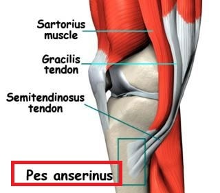 pes anserine bursitis picture tendinopathy