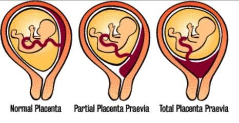 placenta previa image