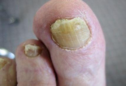 onychomycosis Pic