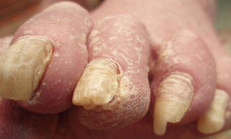 onychomycosis images