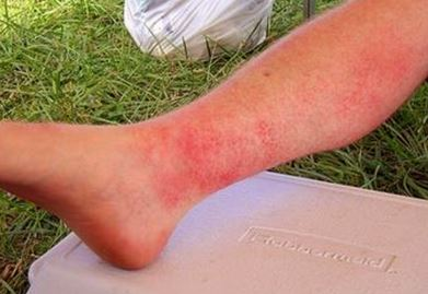photodermatitis images 6