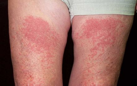 photodermatitis pictures 4