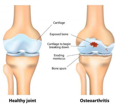 osteoarthritis-image