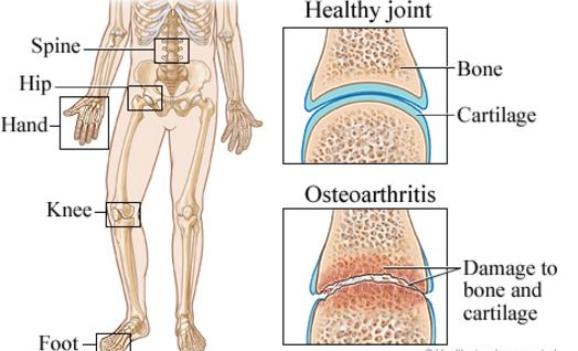 osteoarthritis-pathophysiology-joint-destruction