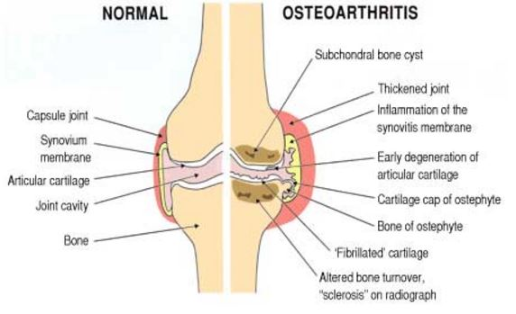 Osteoarthritis Definition Icd 9 Code Symptoms Treatment
