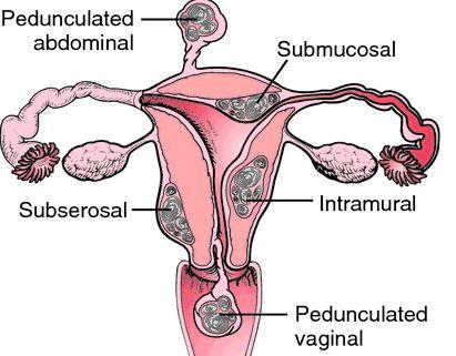 leiomyomas-of-uterus