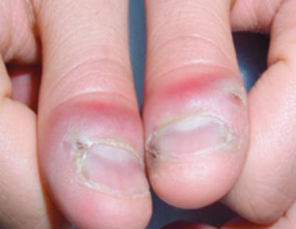 herpetic-whitlow-of-fingers-images
