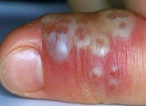 herpetic-whitlow-of-thumb