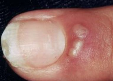 herpetic-whitlow-pic