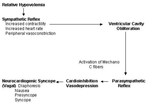 neurocardiogenic syncope - symptoms, treatment, what is, definition, Sphenoid