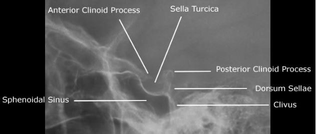 sella-turcica-in-xray-diagnosis