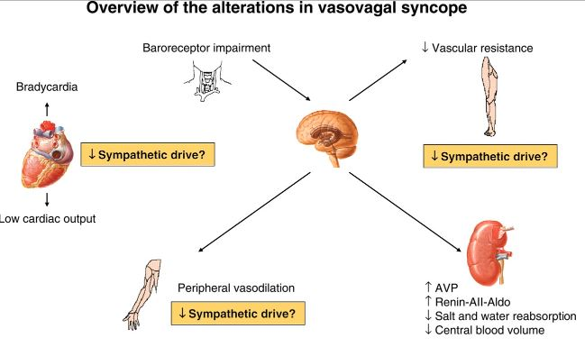 vasovagal-syncope