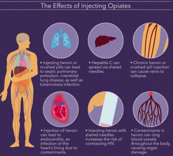 Effects of injecting opiates