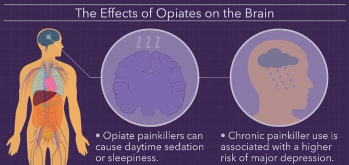 Opiates effect on Brain