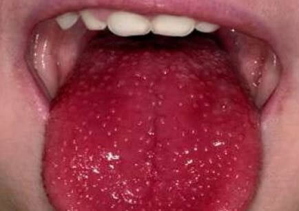 Tongue Warts photos 3