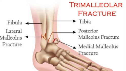 Trimalleolar Fracture Recovery Time Surgery Prognosis Symptoms