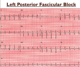 Left Posterior Fascicular Block picture