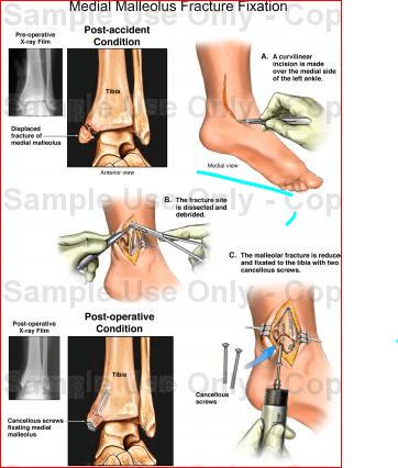 Medial Malleolus Fracture (leg & feet)