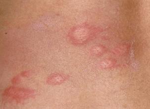 Papular Urticaria symptoms