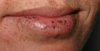 Peutz jeghers Syndrome on mouth