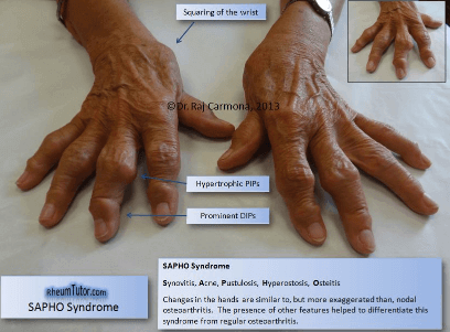 Sapho Syndrome (arms)
