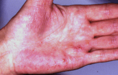 Sapho Syndrome on hand
