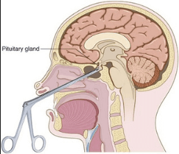 Transsphenoidal Hypophysectomy