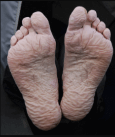 Trench Foot symptoms