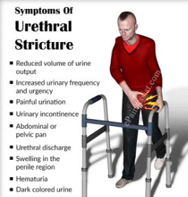 Urethral stricture symptoms