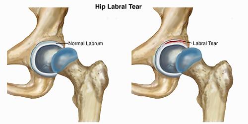 Hip labral tear