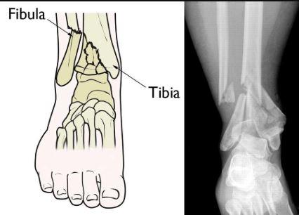 Pilon fracture