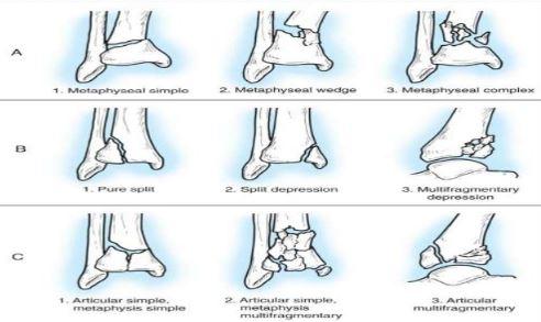 Pilon fracture classification types