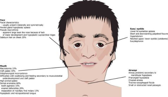Treacher Collins Syndrome features