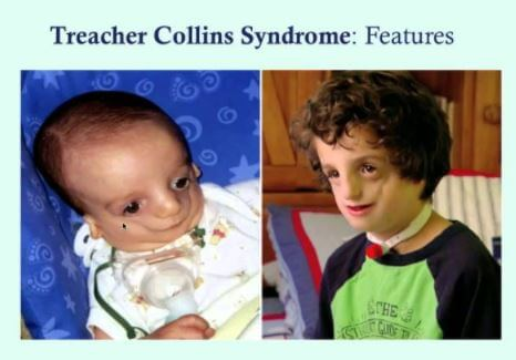 Treacher Collins Syndrome images